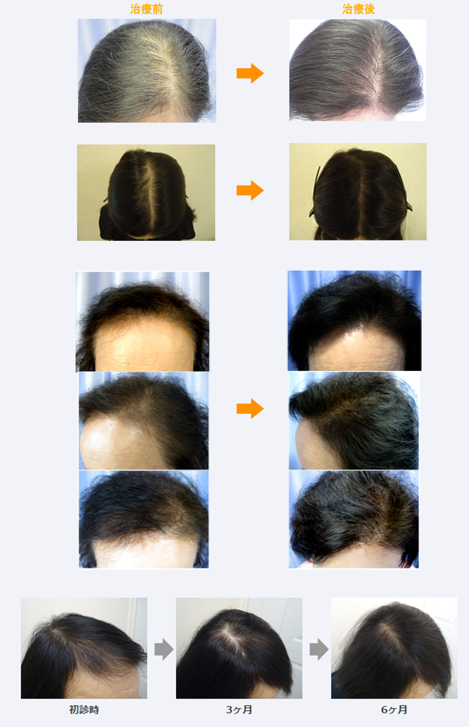 女性薄毛症例画像